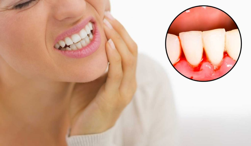 Bleeding Gums: No Big Deal, Right?
